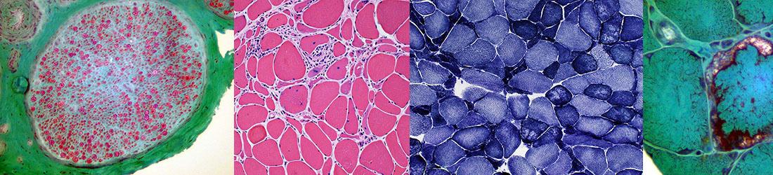 pathology image collage